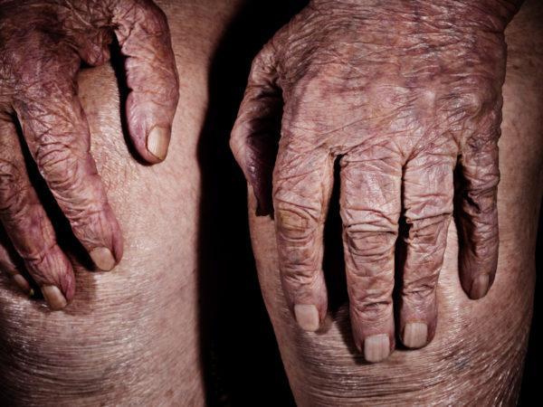 wrinkled aged hands